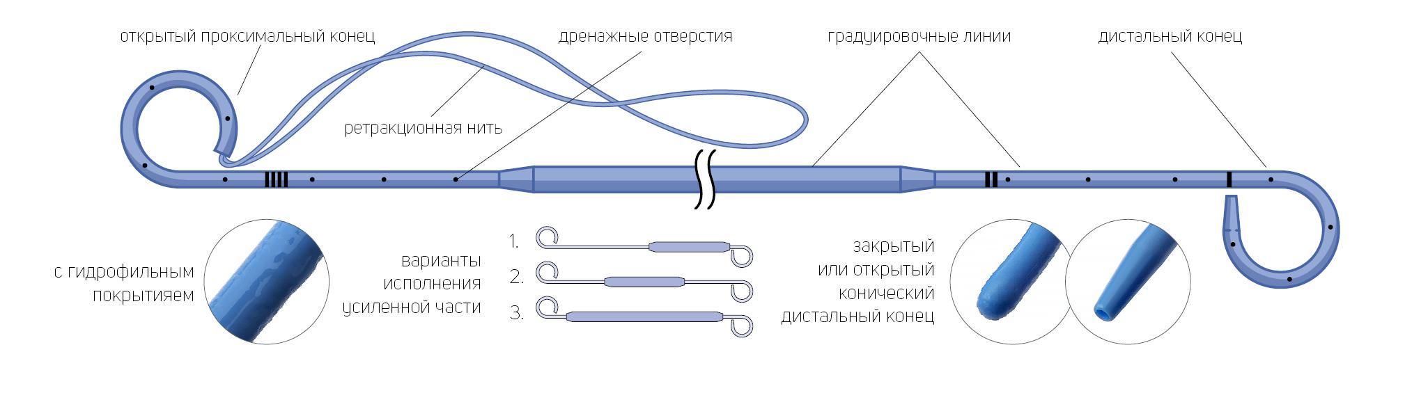 Стент мочеточниковый онкологический двухпетлевой с гидрофильным покрытием с ретракционной нитью