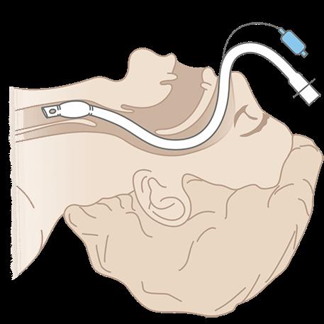 Схема интубации Полярной оральной эндотрахеальной трубки (южной)
