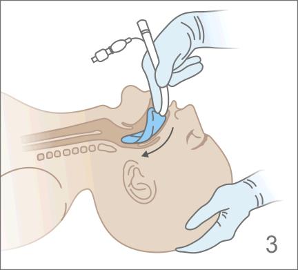 Дистальный конец ларингеальной маски ввести в рот пациента по направлению к твердому небу
