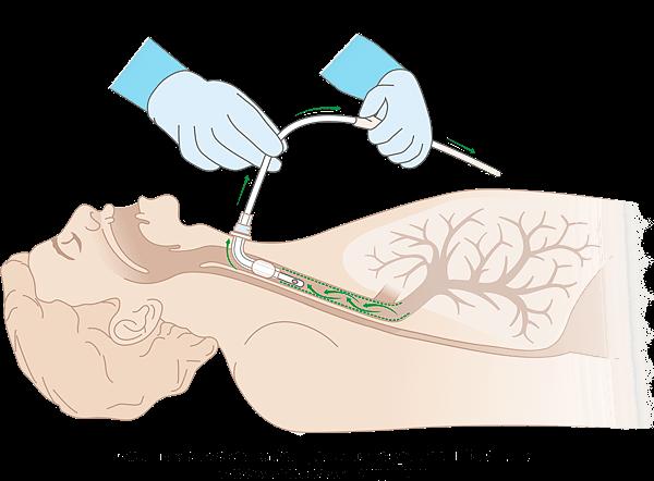 Схема использования Аспирационного катетера MEDEREN с эндотрахеальной трубкой